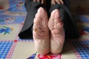 pies-vendados-en-china-1